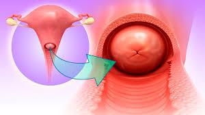 Hpv konizasyon nedir, Papillomavirus ne demek, Hpv cin nedir